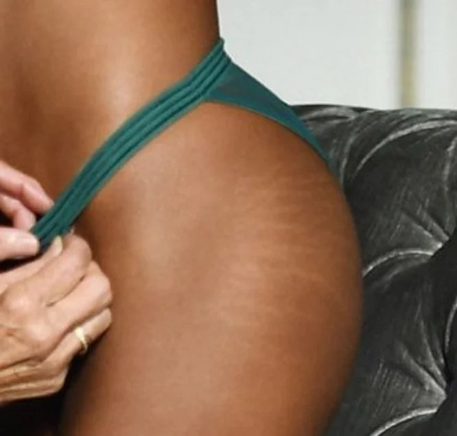 This Victoria's Secret Model Without Photoshop Is the Most WTF of the Day