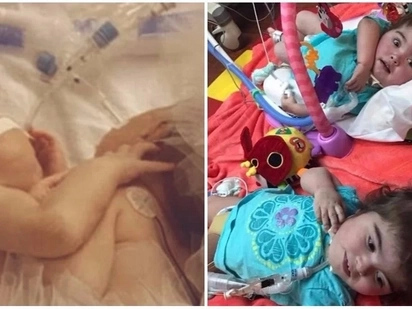 Formerly conjoined twins still fighting to stay alive 2 years after separation