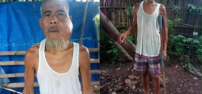 Tulungan natin si manong! Netizen asks help for old ailing Pinoy