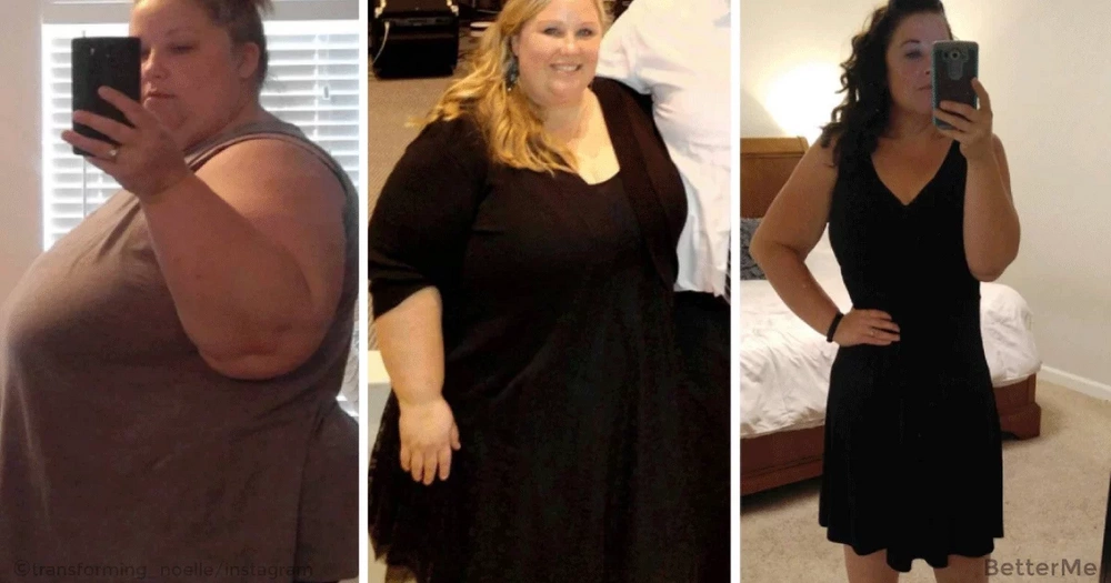 Noelle dropped 210 pounds without surgery. See her transformation