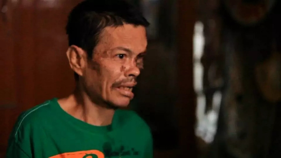 Tatay Gilbert is full of hope despite losing half of his face