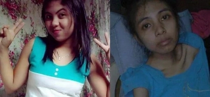 PHOTO: This young woman was allegedly ABUSED by boyfriend in QC; FIND OUT the shocking details
