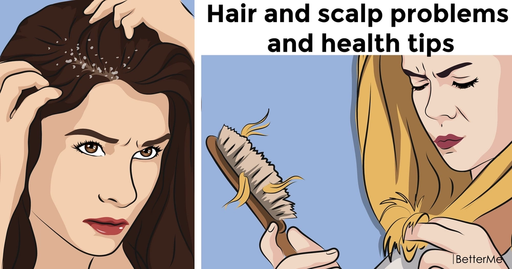 Hair and scalp problems and health tips