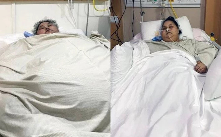 Fattest woman in the world that weighs shocking 500 kilograms begins her journey to get normal (photos)