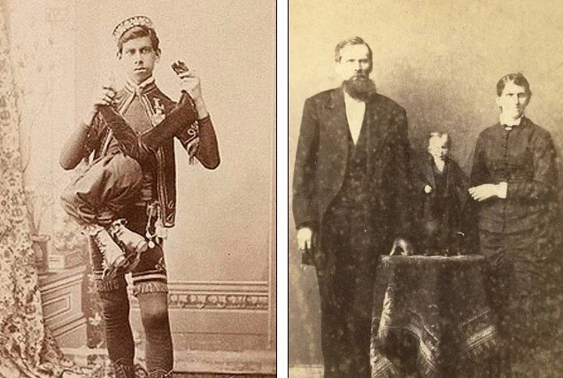 These BIZZARE photographs from 19th century show how people are OBSESSED with physical deformities