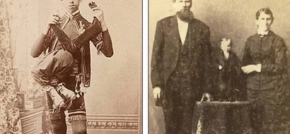Freak show! New archive of 19th century images show people's OBSESSION with physical deformities