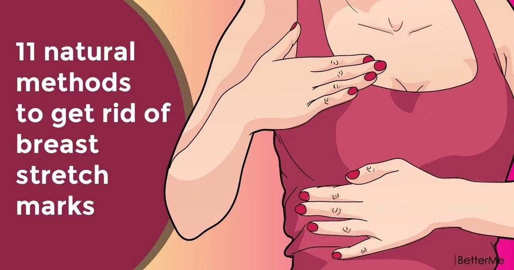 11 natural methods to get rid of breast stretch marks