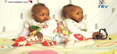 The conjoined twin sisters at KNH were joined at the anus and it cost KSh 150 million to separate them