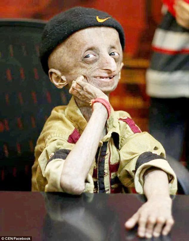 Boy who aged 10 times faster than normal dies of progeria