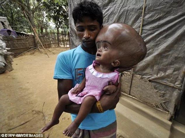 Baby born with hydrocephalus undergoes life-saving operation
