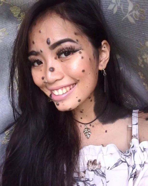 She was bullied for her mole-covered face