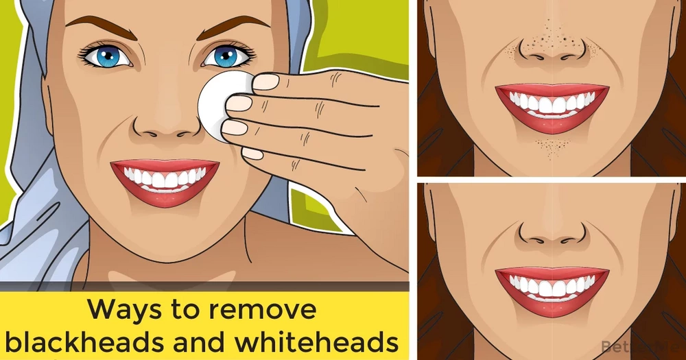 Ways to remove blackheads and whiteheads with stuff from the kitchen
