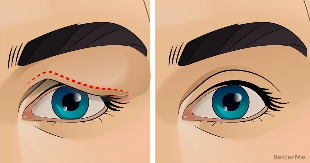 The natural remedy that can help you with sagging eyelids