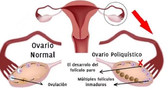 6 sorprendentes razones por las que una mujer es estéril