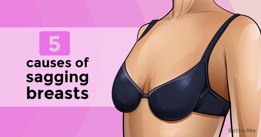 5 causes of sagging breasts