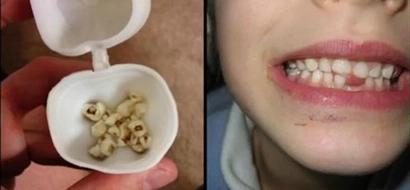 Médicos de todo el mundo ruegan a los padres que guarden los dientes de sus hijos