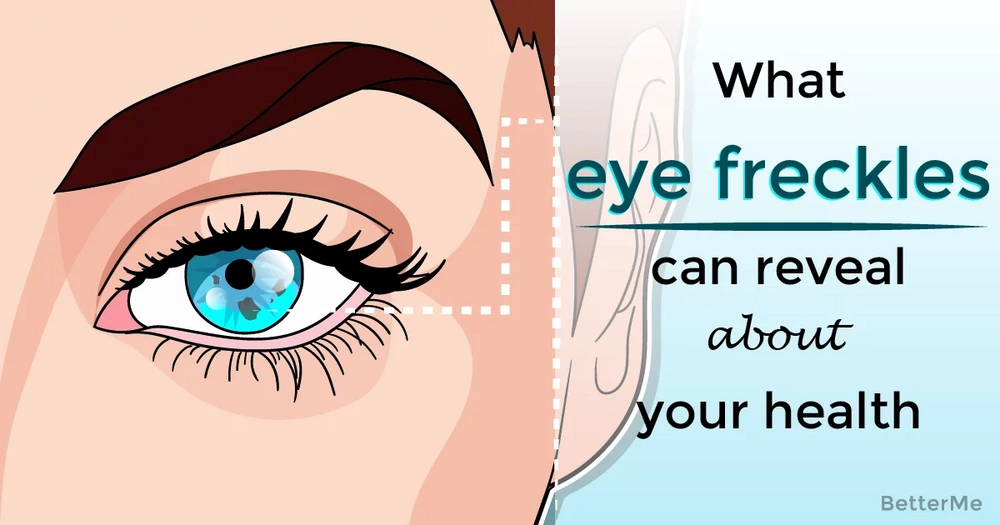 What eye freckles can reveal about your health
