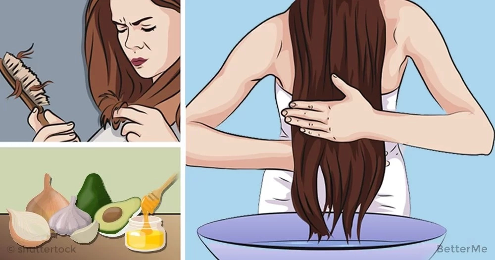 5 natural remedies with onion can help you prevent hair loss