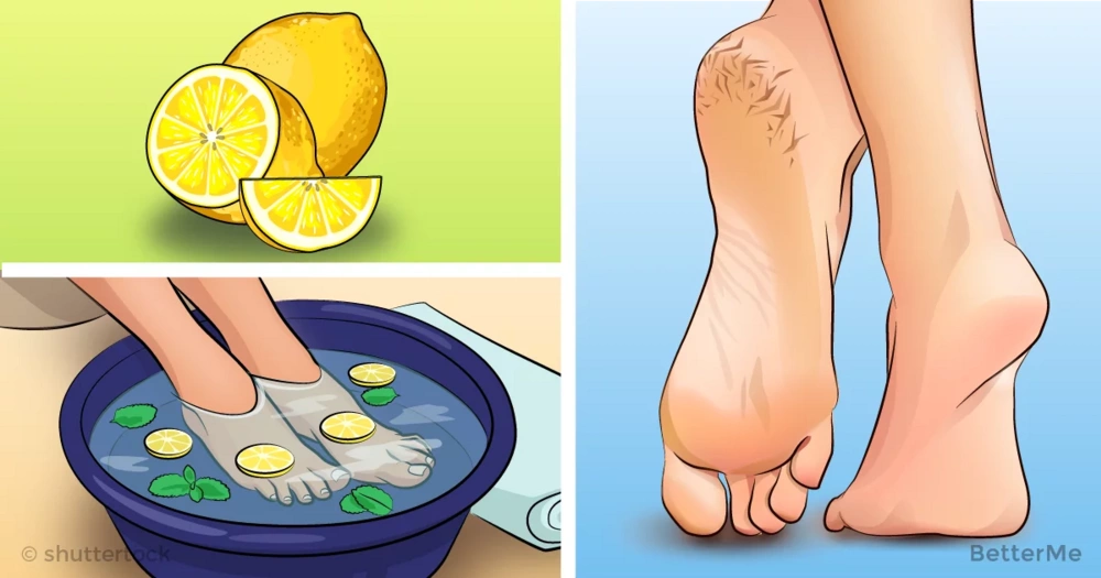 9 incredible home remedies that can help you alleviate cracked heels