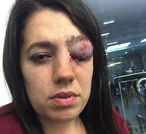 Recibió una puñalada en el ojo mientras estaba de fiesta