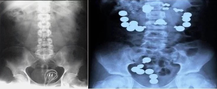 Crazy x-rays you won't wish to see! We wonder how they ingested these items!