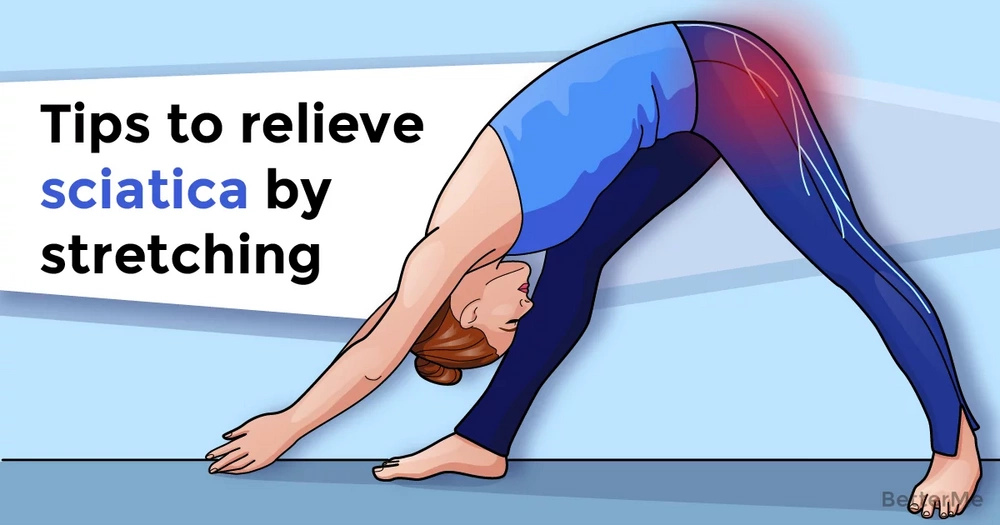 Tips to relieve sciatica by stretching