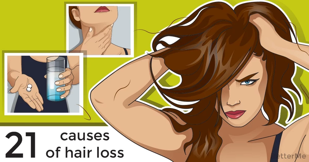 21 causes of hair loss