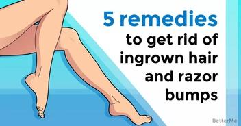 5 remedies to get rid of ingrown hair and razor bumps