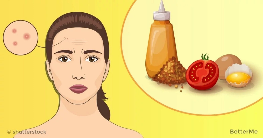 10 causes of pimples on forehead and simple ways to prevent them