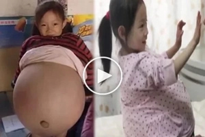 Is this 4-Year-Old Girl Pregnant? How Could this happen?