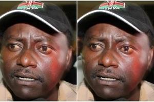 Renown Kikuyu musician hospitalised following sudden illness