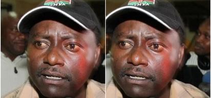 Mashabiki wa mwanamuziki maarufu wa Mlima Kenya wamtakia nafuu hospitalini