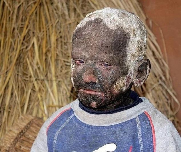 Chico se 'convierte lentamente en PIEDRA' sufre una devastadora condición en la piel ¡que congela su cuerpo!