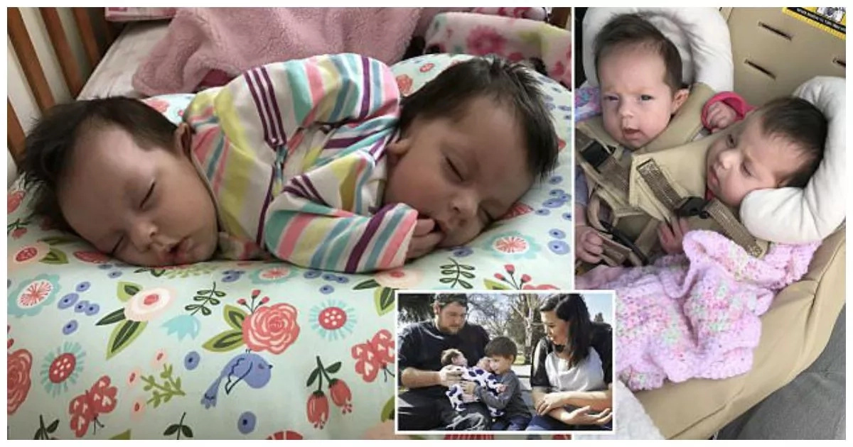This brave mother gives birth to healthy conjoined twins after defying doctor's advice to have abortion (photos, video)