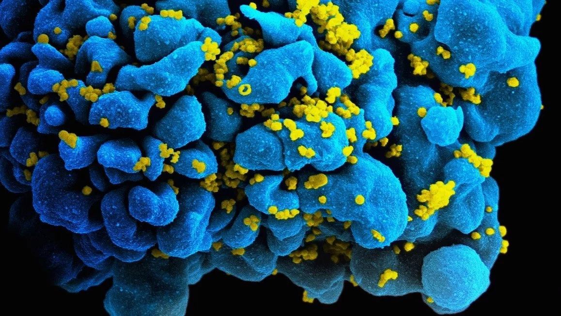 Scientist's believe 'targeting' BREAKTHROUGH will lead to HIV CURE