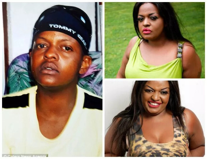 PHOTOS: Man Turns Into Woman After His Body Develop Breasts
