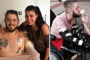 Hombre que perdió las 4 extremidades recibió un doble trasplante de brazo para sostener la mano de su prometida