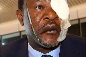 Was Wetangula beaten by his wife? He responds