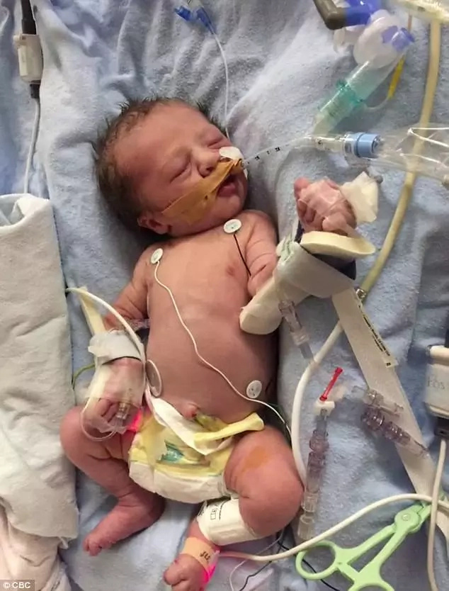 Meet miracle baby who underwent world's first heart surgery in the mother's womb