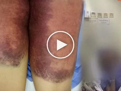Mother seeks justice for 18-year-old daughter - abused, burned, paddled during brutal hazing
