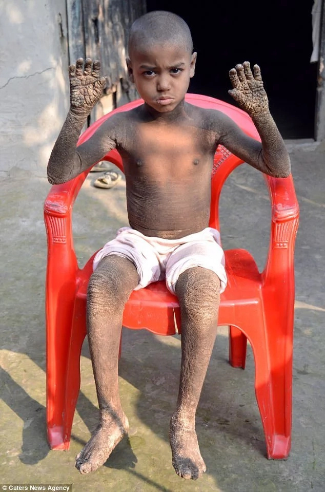 Boy, 8, makes AMAZING recovery after his body nearly turned into STONE (photos, video)