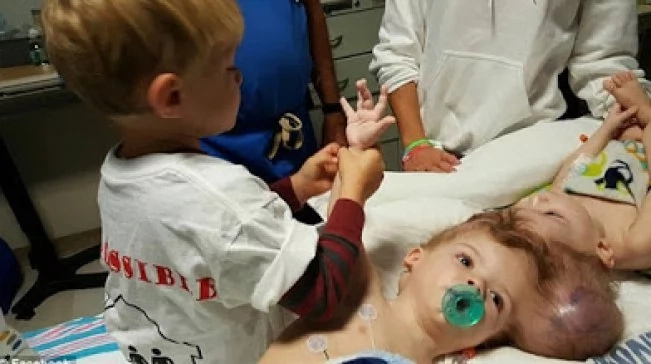 Conjoined twins, who shared one head, are successfully separated! Both toddlers survived! PHOTOS