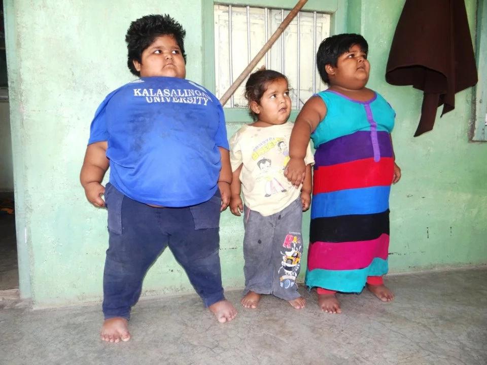 Bebés en la India engordan sin parar