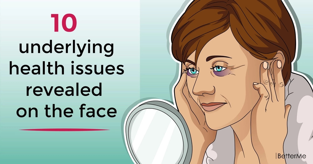 10 underlying health issues revealed on the face