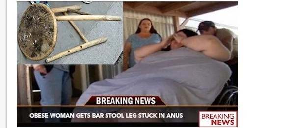 Doctors Remove Barstool Leg From Obese Woman's Anus After Chair Collapses Underneath Her