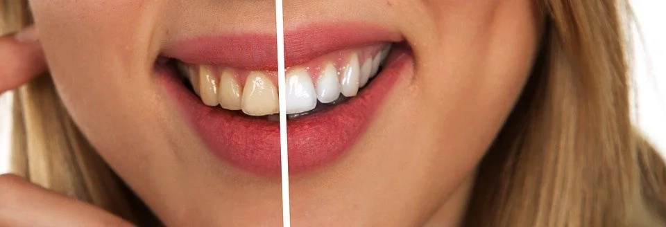 Use Baking Soda And Aluminum Foil To Whiten Your Teeth At Home