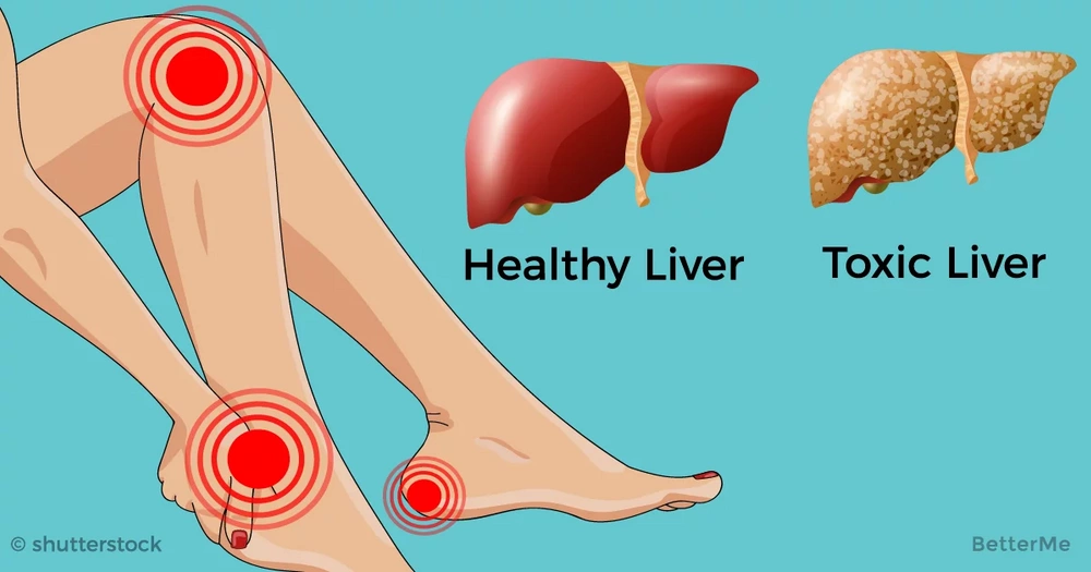 16 signs that your liver is overloaded with toxins