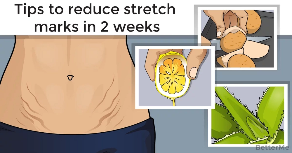 Tips to reduce stretch marks in 2 weeks