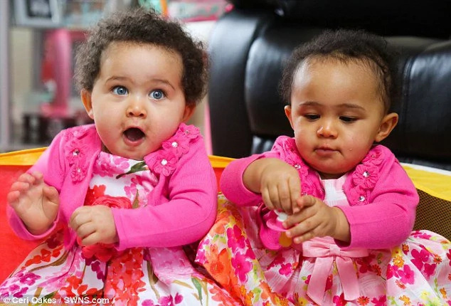 Genetically identical twins born looking completely different