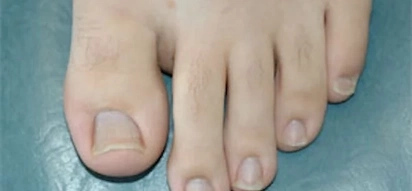 Most people's second toe is longer than others! Here is what it means – Amazing!